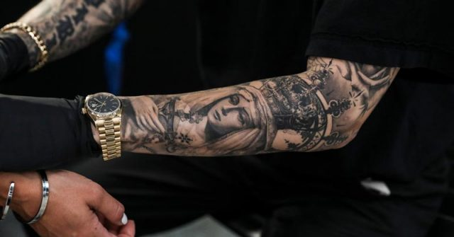 Tatuagem remoção